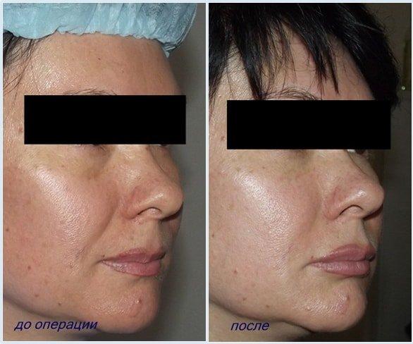 Пластическая хирургия в алматы липофилинг пластическая хирургия востановление лица после катастрофы